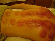 Fire Cupping -2.jpg