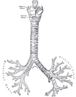 Bronchomalacia congenital disorder of respiratory system