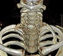 Cervical Rib Wikipedia