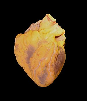 Traumatic cardiac arrest - Human heart