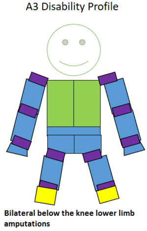 4.5 point player - Type of amputation for an A3 classified sportsperson.