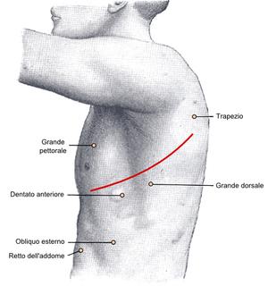 Italiano: Incisione chirurgica per il trattame...