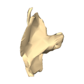 Left temporal bone close-up superior.png