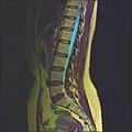 Lumbosacral MRI case 13 08.jpg