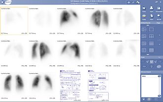 Gamma camera - An example of lung scintigraphy examination