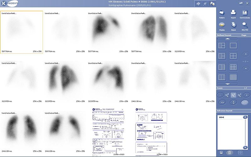 Lung scintigraphy keosys.JPG
