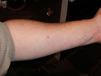Mantoux test - Mantoux test injection site in a subject without chronic conditions or in a high-risk group clinically diagnosed as negative at 50 hours