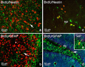 Adult neurogenesis - Image: Phenotypes of proliferating cells in the Rostral Migratory Stream and Dentate Gyrus
