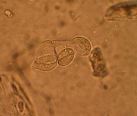 lurina non conteneva glucosio che urina ancora frequentemente