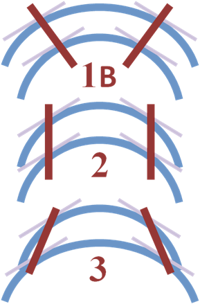 Ramsay Classification