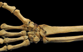 Carpometacarpal joint - Bones of a human wrist. In this photo both the free position and saddle shape of the first CMC joint and the proximal transverse palmar arch are clearly visible.