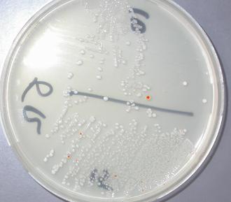 Streptococcus agalactiae - Red colonies of S.agalactiae in granada agar. Vagino-rectal culture 18h incubation 36°C anaerobiosis