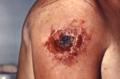 Smallpox vaccination 1974 001.tif