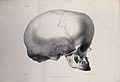 The deformed skull of James Cardinal; profile view. Lithogra Wellcome V0009799.jpg