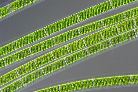 The freshwater alga Spirogyra with visible chloroplasts