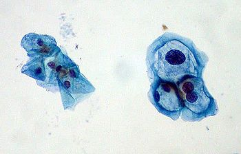 ThinPrep Pap smear with group of normal cervical cells on left and HPV-infected cells on right. The HPV-infected cells show features typical of koilocytes: enlarged (x2 or x3) nuclei and hyperchromasia.