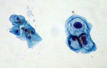 Preparado delgado  con grupo de células normales cervicales a izq.,  y células infectadas con HPV a der. Éstas con HPV muestran formas típicas de coilocitos: núcleos aumentados x2 o x3, e hipercromasia
