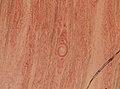 Trichinella spiralis (YPM IZ 093421).jpeg