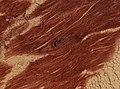 Trichinella spiralis (YPM IZ 095201).jpeg