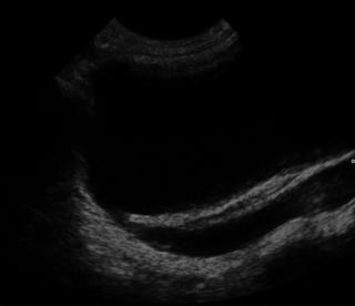 Vesicoureteral reflux