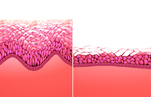 Side-by-side illustration depicting thinning effects of menopause on musoca of vaginal wall