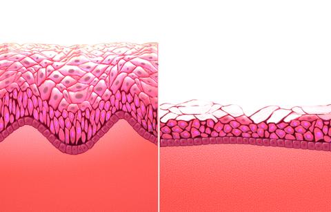predominio de celulas epiteliales escamosas intermedias