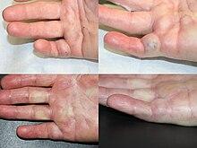 Collagenase Clostridium Histolyticum Wikipedia