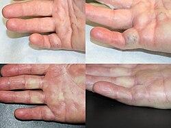 Krokfinger Symptomer