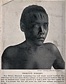 A boy with deep scars on his forehead as a result of surgery Wellcome V0015970.jpg