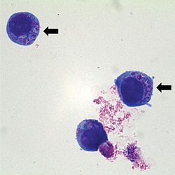 Anaplasma phagocytophilum cultured in human promyelocytic cell line HL-60.jpg
