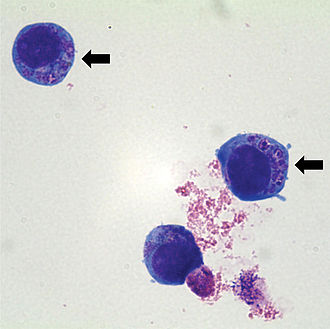 Anaplasma phagocytophilum - Human HL60 cells containing Anaplasma phagocytophilum (indicated by arrows) which are basophilic intracytoplasmic inclusions when stained with Wright-Giemsa stain.