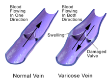 What Causes Vein Disease