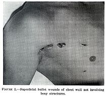 Chapter1figure1-Superficial bullet wound.jpg