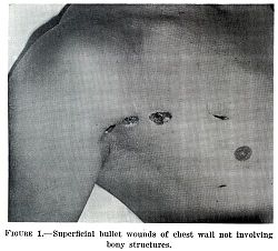 Superficial bullet wounds