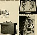 Elementary and dental radiography - by Howard Riley Raper (1918) (14571761869).jpg