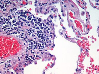 Staining - Microscopic view of a histologic specimen of human lung tissue stained with hematoxylin and eosin.