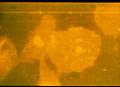Epithelzellen39632.jpg