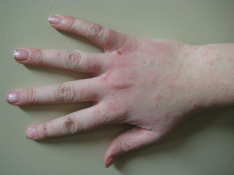 File:Human hand with dermatitis.jpg
