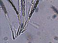 Hypoxylon fuscum asci, Gladde kogelzwam sporenzakjes (1).jpg