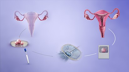 in vitro fertilization refers to conception by an unmarried couple