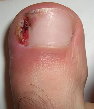 English: Clear picture showing the ingrown nai...