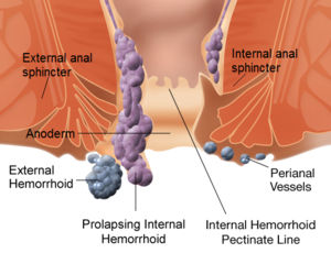 300px Internal and external hemorrhoids Hemorrhoid