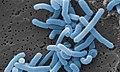 Lactobacillus paracasei.jpg