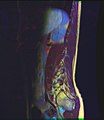 Lumbosacral MRI case 14 02.jpg