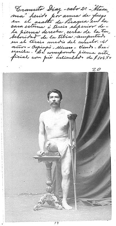 "Photo of Chilean private first class Transito Diaz, injured during the Landing on Pisagua. The photo belongs to the ""Album de invalidos de la Guerra del Pacifico"", 130 photographic records ordered by the D. Santa Maria government to demonstrate the pensions and orthopedic devices given to disabled war veterans. 4,081 Chilean soldiers returned disabled from the war, that is 10% of the expeditionary force. In 2008, 280 women were receiving a pension as the daughter or wife of a veteran. Mutilado-en-la-GdP-21.jpg"