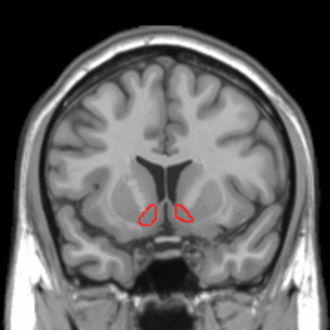 Nucleus accumbens - Image: Nucleus accumbens MRI