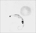 PSM V71 D368 Trypanosoma lewisi from the blood and human blood corpuscles.png