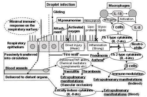 steroid resistant nephrotic syndrome prognosis
