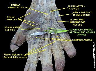 Superficial palmar arch - Image: Slide 15RRR