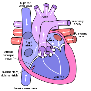 Diagram of a heart with tricuspid atresia.